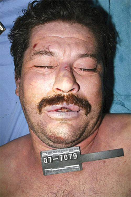 An autopsy photo of Juan Mendoza Farias