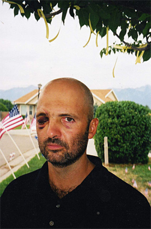 Morris, of Salt Lake City, lost his right eye in the 2002 firefight with Omar Khadr.