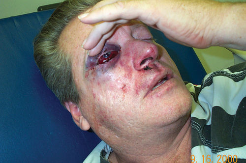 DeLong lost his eye six days after he was attacked in September 2004.