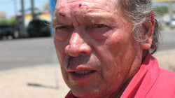 Leopoldo Arteaga has scabs on his face a day after his arrest.