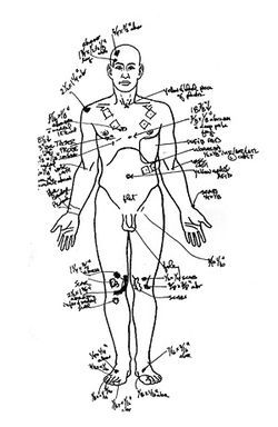 Autopsy notes on Keith Graff: Circles show where Taser probes struck Graff's chest about three inches apart.