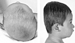 Some doctors referred plagiocephaly cases for surgery.