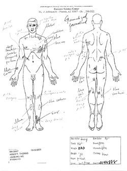 Abbott suffered numerous cuts and bruises, as shown in this autopsy diagram.