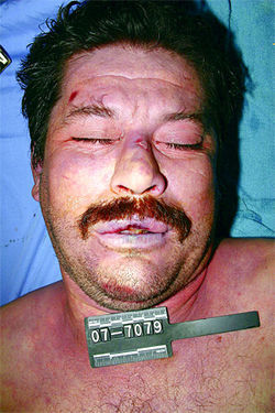 A morgue photo of Juan Mendoza Farias, who died under suspicious circumstances in Arpaio's jail.