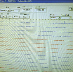 An EEG photographed by Drew's mom one night in the ER.