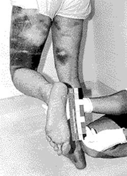 Batons caused the bruises on Eric Vogel's legs during his arrest.